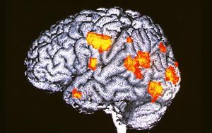 Активность мозга больного шизофренией во время зрительной и слуховой галлюцинации (иллюстрация Wellcome Dept. of Cognitive Neurology).
